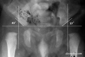 Ацетабулярный угол / индекс — норма у детей до 1 года