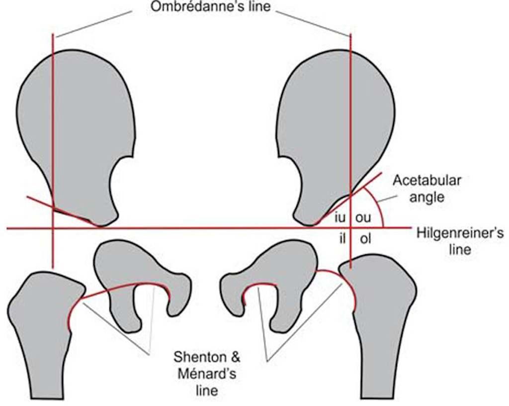 Схема Hilgenreiner для диагностики дисплазии тазобедренного сустава