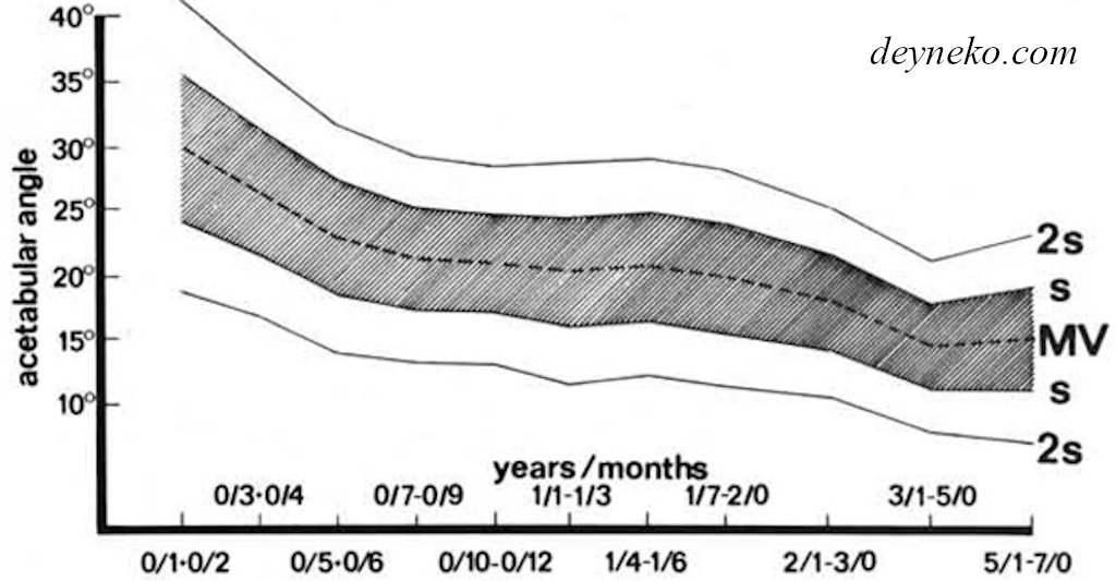 Норма ацетабулярного угла по Tonnis в разных возрастных группах